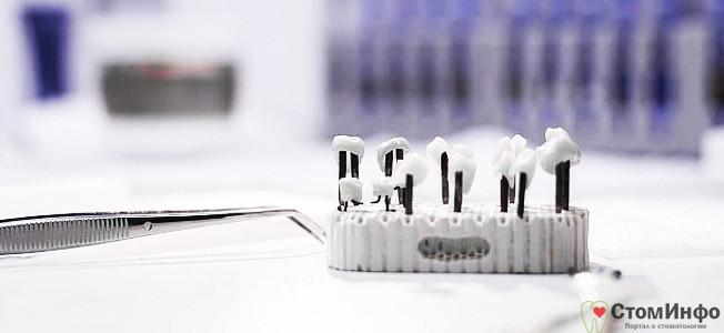 гарантии на зубные имплантаты