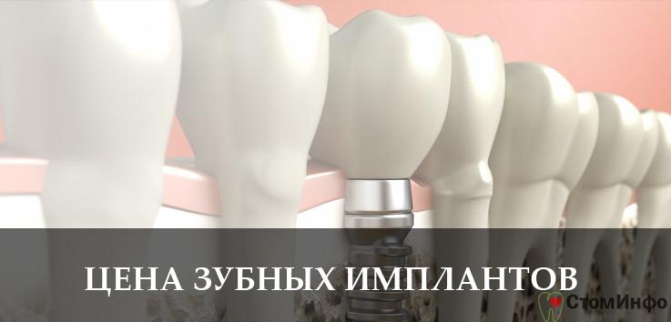 Цена на установку зубных имплантов