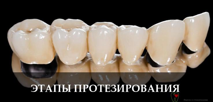 Недорогое протезирование зубов, цена и этапы