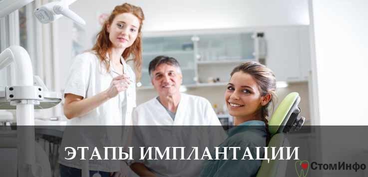 Этапы имплантации зубов челюсти