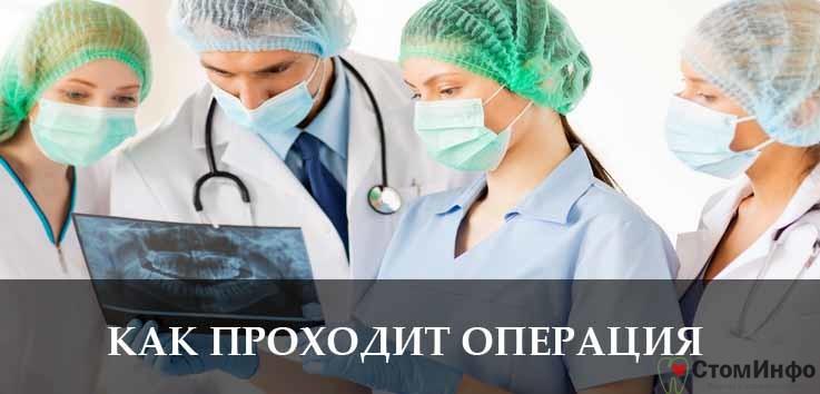 Как проходит операция?