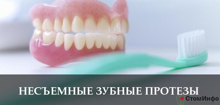 Как выглядят зубные протезы несъемного типа