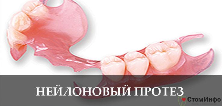 Что собой представляет нейлоновый протез