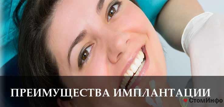 Преимущества зубной имплантации