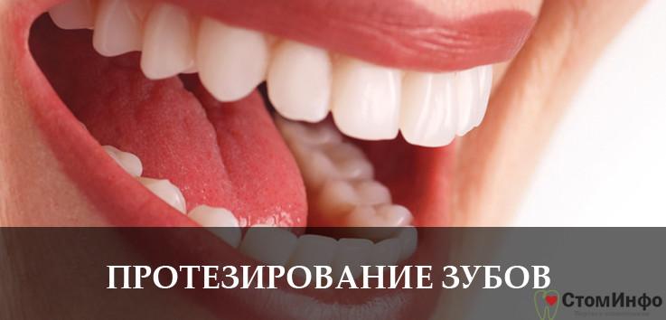 Протезирование зубов: какой вид протеза лучше, фото, особенности