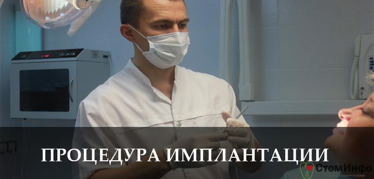 Процедура зубной имплантации