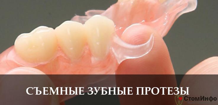 Какие бывают зубные протезы съемные