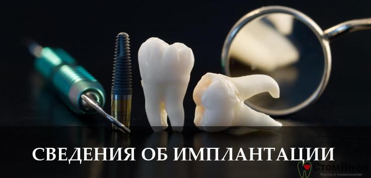 основные сведения о процессе имплантации