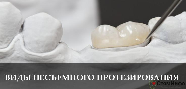 Виды несъемного протезирования