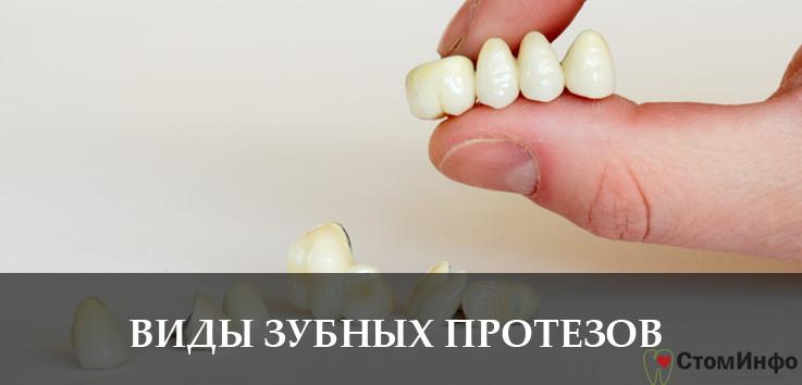Какие бывают виды зубных протезов