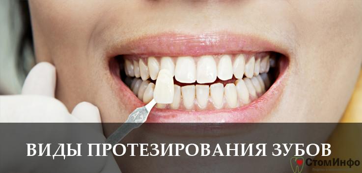 Виды протезирования зубов: плюсы, минусы, особенности
