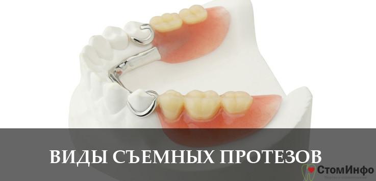 Виды съемных зубных протезов: цена и фото различных вариантов