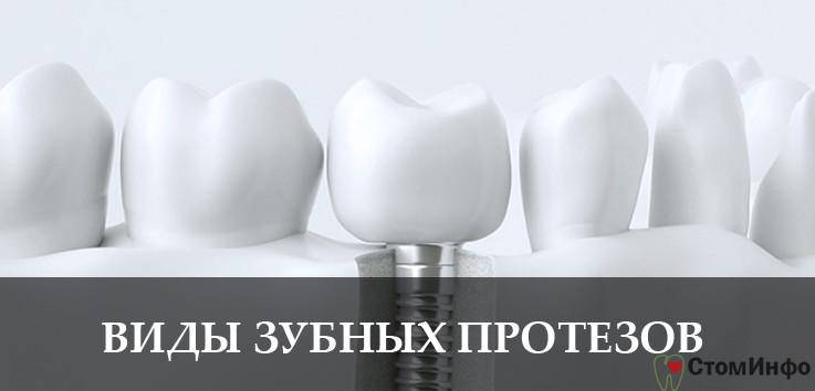 Виды зубных протезов