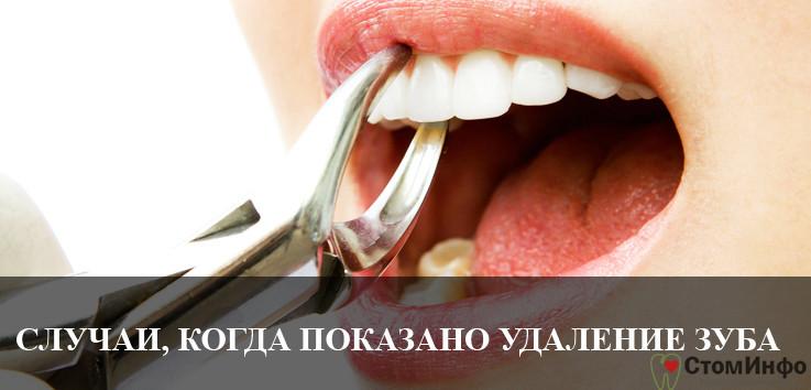 Случаи, когда показано удаление зуба