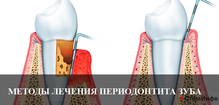 Эффективные методы лечения периодонтита зуба