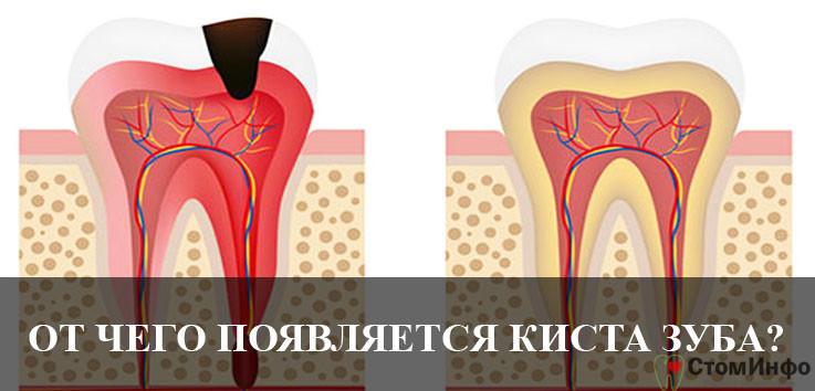 От чего появляется киста зуба