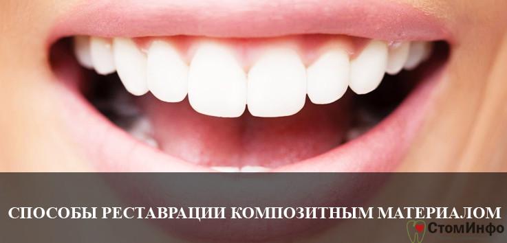 Способы реставрации зубов композитными материалами