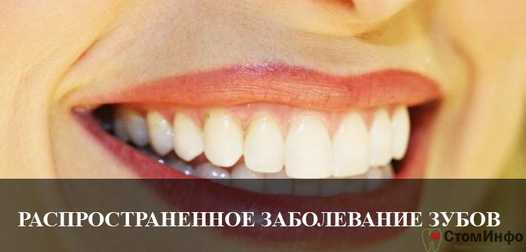 Самое распространенное заболевание зубов