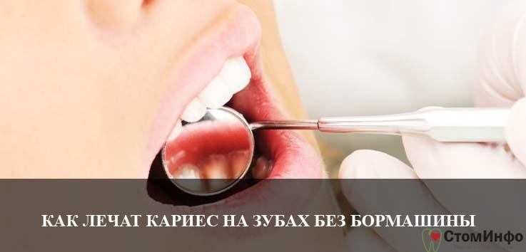 Как лечат кариес на передних зубах без бормашины