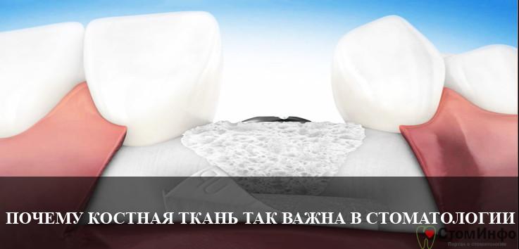 Почему костная ткань так важна в стоматологии