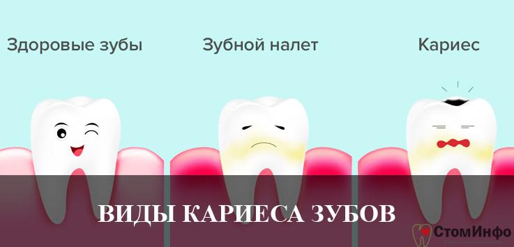 Какие виды кариеса зубов существуют