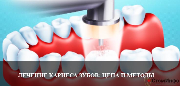Лечение кариеса зубов: цена и современные методы