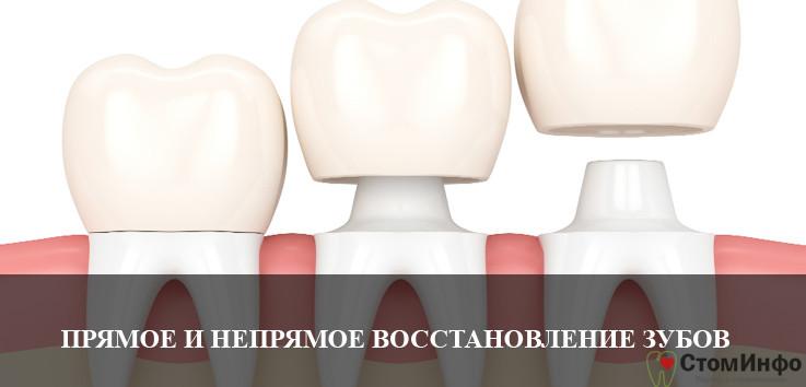прямое и непрямое восстановление зубов