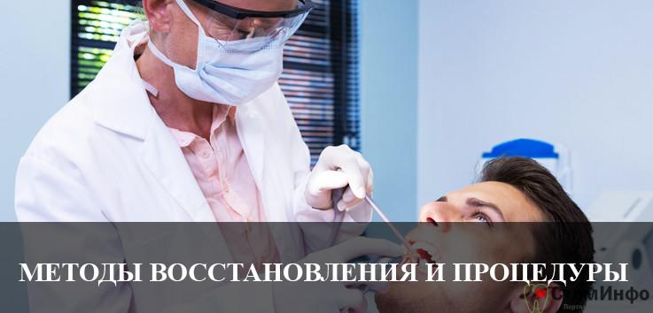 Методы восстановления зубов и показания к проведению процедуры