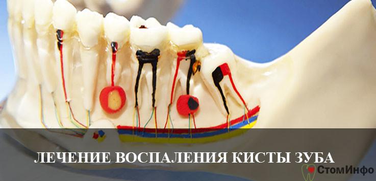 Лечение воспаления кисты зуба