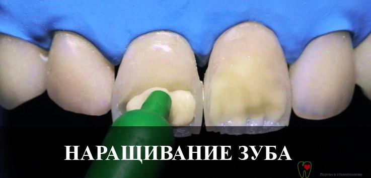 Фотополимерное наращивание переднего зуба: цена, преимущества