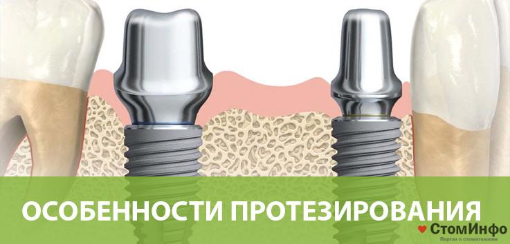 Особенности протезирования