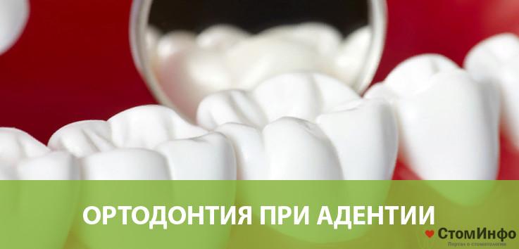 ортодонтия при адентии?