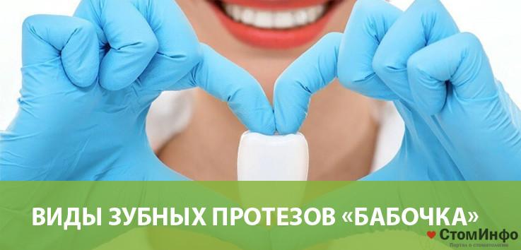 Виды зубных протезов «Бабочка»