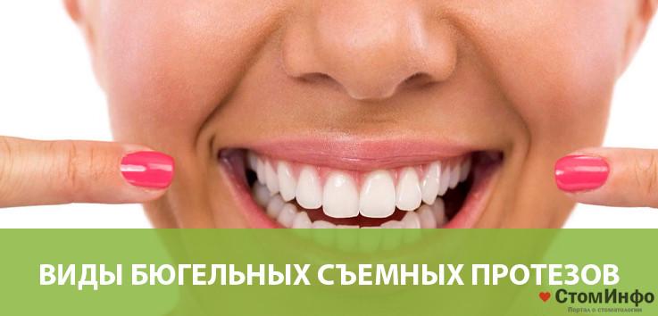 Видыбюгельныхсъемных зубных протезов