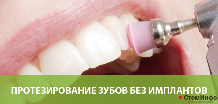 Протезирование зубов без имплантов с помощью CAD/CAM системы