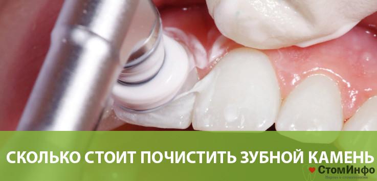 Сколько стоит почистить зубной камень