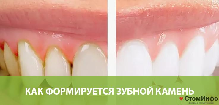 Как формируется зубной камень