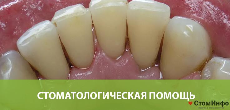 Стоматологическая помощь в избавлении от зубного камня