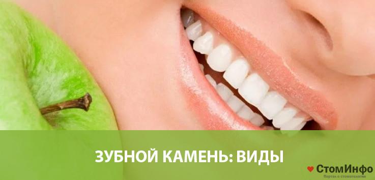 Зубной камень: виды