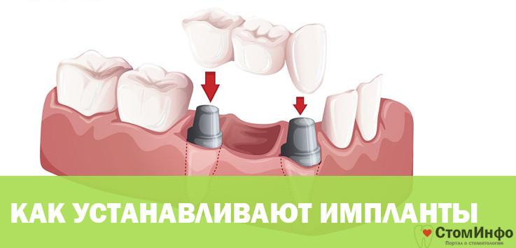 Как устанавливают импланты зубов: этапы установки