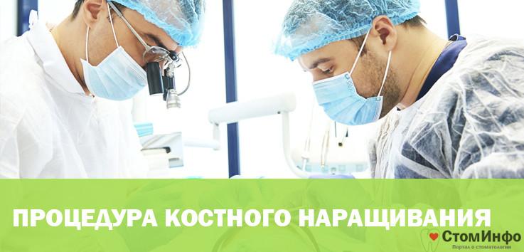 Хирургические особенности процедуры костного наращивания