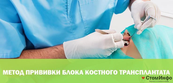 Метод прививки блока костного трансплантата