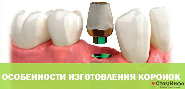 Особенности изготовления коронок для имплантатов