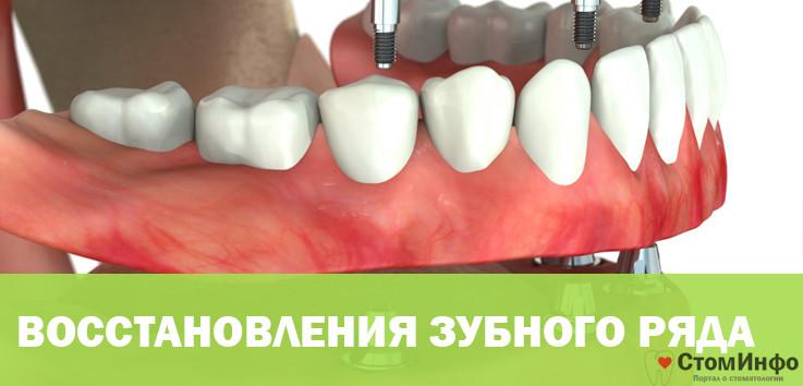 Особенности технологии и этапы восстановления зубного ряда