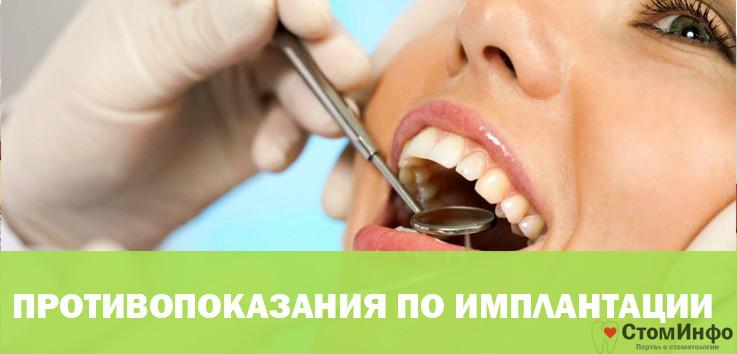 Противопоказания по проведению зубной имплантации