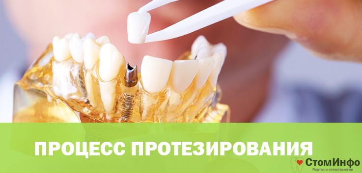 Процесс протезирования