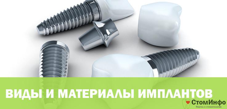 Виды и материалы имплантов