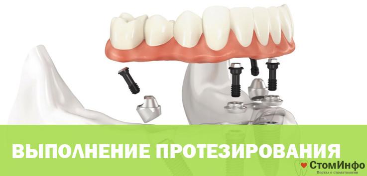 Выполнение протезирования