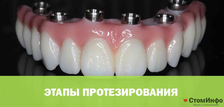 etapy protezirovaniya