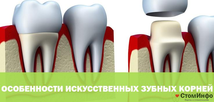 Особенности искусственных зубных корней